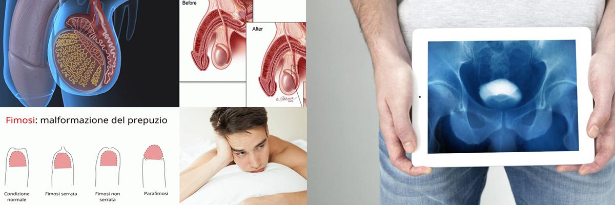 Terapie andrologiche